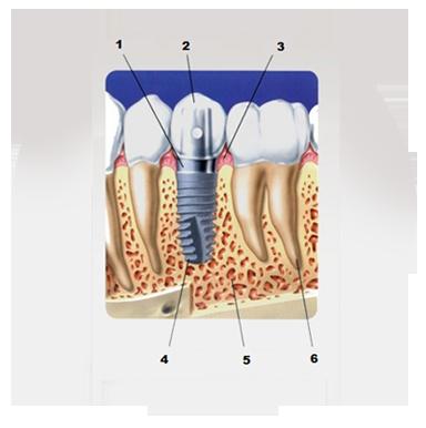 Краткая схема имплантации